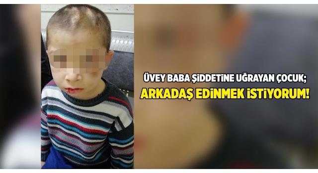 Üvey babasının işkencesi nedeniyle korumaya alınan çocuk: Arkadaş edinmek istiyorum